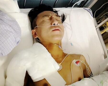 陈羽凡手术照片曝光 身上插针管表情痛苦